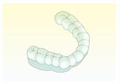 歯ぎしり1