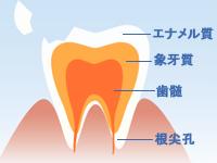 欠けた歯1