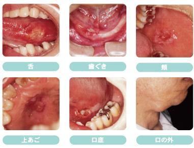 口腔ガン症例